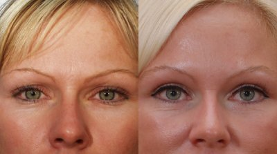 Bellevue-Blepharoplasty -Surgery