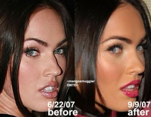Megan Fox Plastic Surgery Nose Job