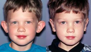 Pic Kids Ears