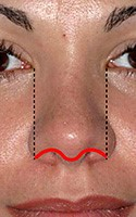 Rhinoplasty - Narrowing the Wide Nose 3