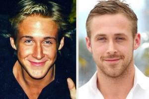 Ryan Gosling Plastic Surgery Nose Job