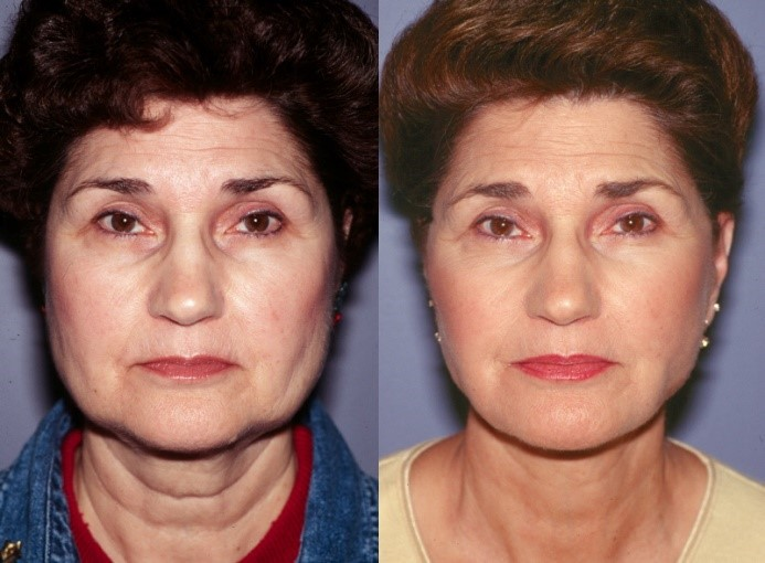 Bellevue, Seattle Facelift, Cheek Lift and Mini-Lift Surgery