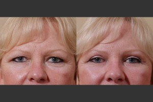 bel-red-blepharoplasty-2a