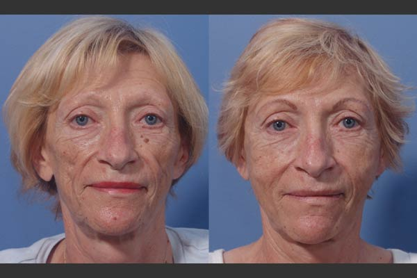 Cosmetic Surgery Fat Transfer 47