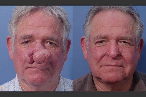 rhinophyma treatment options - bel-red center for aesthetic surgery, Skeleton
