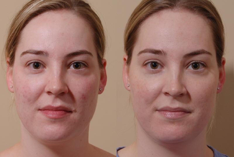 facial surgery of seattle