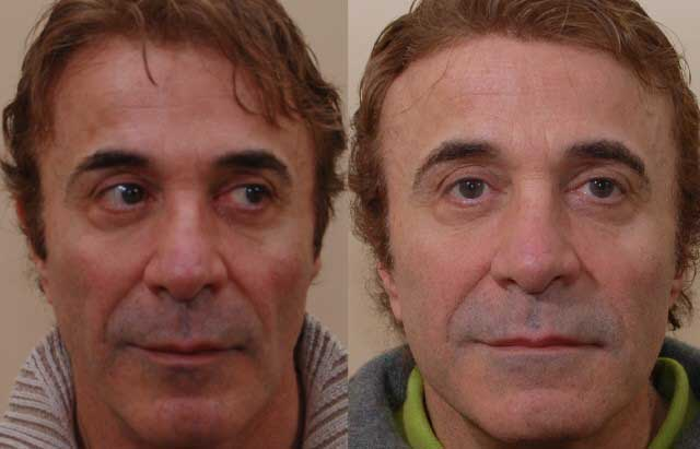sculptra_before_after