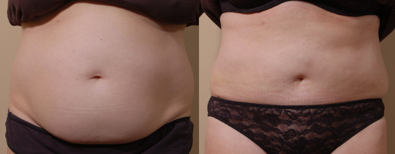 Tummy Tuck Surgery Seattle Washington