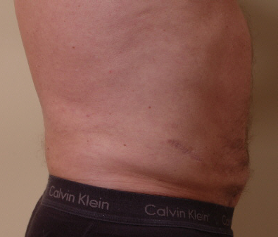 Body Sculpting Liposuction Before & After Photos