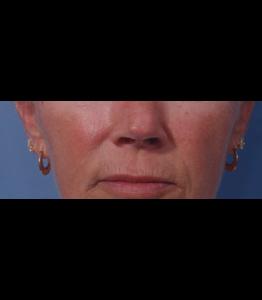 Laser Resurfacing Pt 2 Upper Lip Day 0 Pre-Op