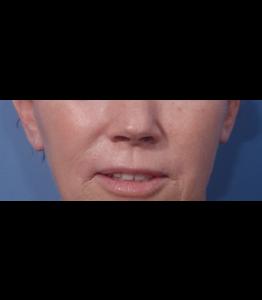 Laser Resurfacing Pt 2 Upper Lip Day 18