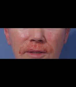 Laser Resurfacing Pt 2 Upper Lip Day 2