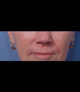 Laser Resurfacing Pt 2 Upper Lip Day 25