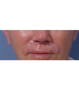 Laser Resurfacing Pt 2 Upper Lip Day XX
