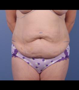 Tummy Tuck Healing Process Week 0 Marking Pre-Op Frontal