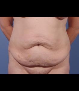 Tummy Tuck Healing Process Week 0 Pre-Op Frontal