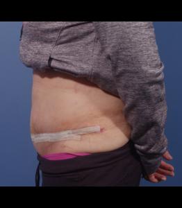 Tummy Tuck Healing Process Week 2 Post-Op Sideview