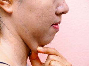 Double-Chin, Kybella