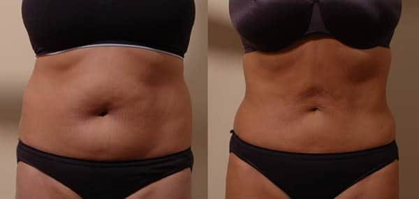 Seattle Smartlipo™ Laser Liposuction | Best Smartlipo Bellevue Washington