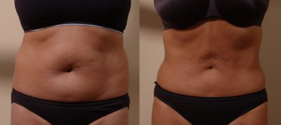Bellevue Liposuction Body Contouring | Liposuction Body Contouring Seattle Washington
