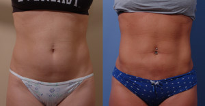 Bellevue Smartlipo™ | Seattle Laser Liposuction Surgeon