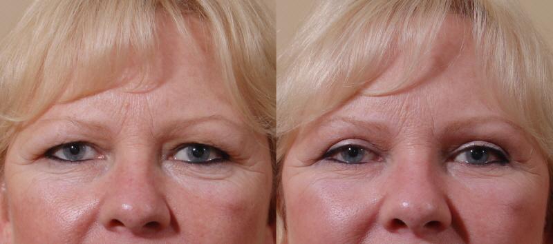 Blepharoplasty - Eyelid Surgery in Bellevue Seattle