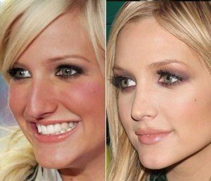 Ashlee Simpson Plastic Surgery Nose Job
