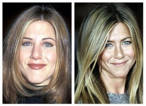 Jennifer Anniston Plastic Surgery