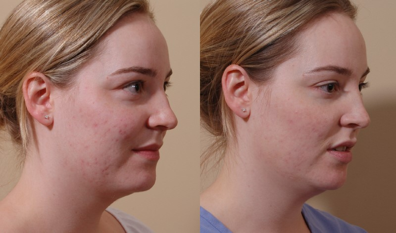 Scar Treatment Correction And Revision Belred Cosmetic