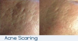 Micro-Needling Seattle Acne Scarring