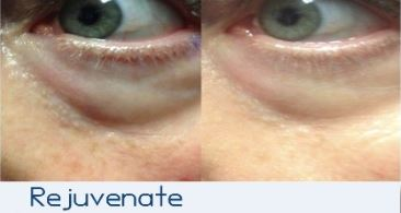Micro Needling Seattle Rejuvenate