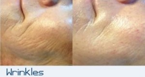 Micro-Needling Seattle Wrinkles
