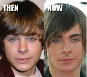 Zac Efron Plastic Surgery Nose Job