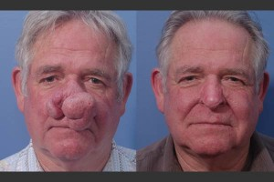 bel-red-laser-resurfacing-rhinophyma-4a