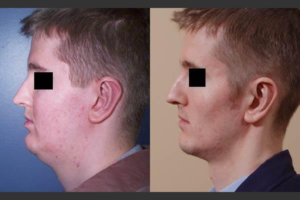 online store 6f5c7 d17d5 bel-red-liposuction-neck