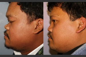 bel-red-rhinoplasty-5b