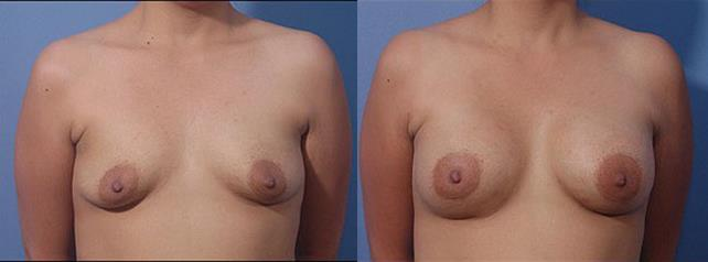 Bellevue, Seattle Breast Lift (Mastopexy)