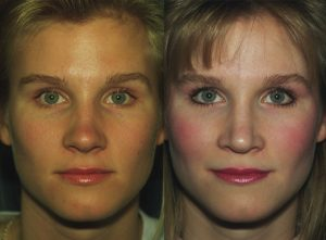 Nose Job Bellevue