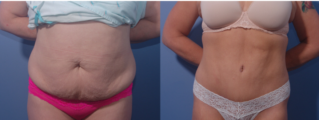 Abdominoplasty Surgeon Bellevue Washington