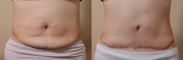 Tummy Tuck Surgeon Bellevue Washington
