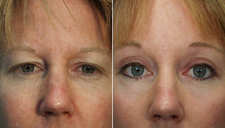 Bellevue Seattle Forehead Brow Lift Surgery Belred Cosmetic Surgery