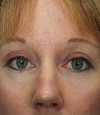 Bellevue, Seattle Brow Lift Patient 1