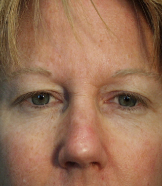 Before & After Eye Brow Lift Surgery Pierce County Washington