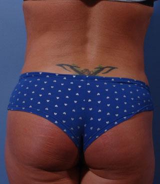 Best Abdominal (Tummy) Smartlipo Contouring Bellevue   Abdominal Abdominal (Tummy) Smart Liposuction Seattle Washington