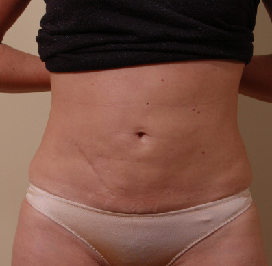 Liposuction For Belly In Redmond