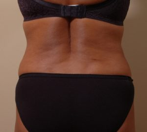Liposuction For Back Fat In Bothell