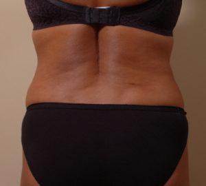 Liposuction For Back Fat In Everett