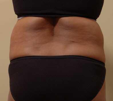 Liposuction For Back Fat In Redmond