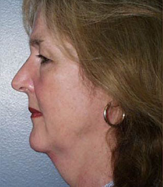 Side Image of Brow lift in Bellevue   Side Image of Brow lift in Seattle