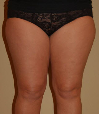 Bellevue, Seattle Liposuction Smartlipo Arms and Thighs Patient 8